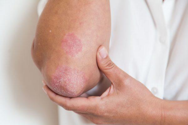 Candida-common-symptoms